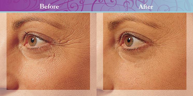Body Ireland Anti Wrinkle Injections Faq Endermologie