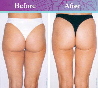 Image Result For Body Lift Before And After Surgery